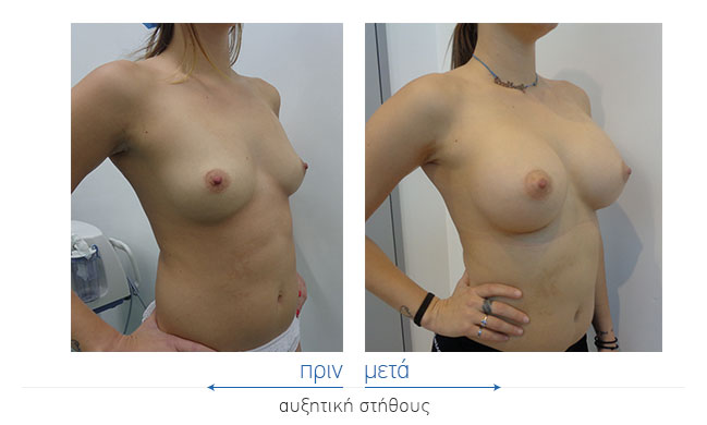Breast Augmentatntion Before and After