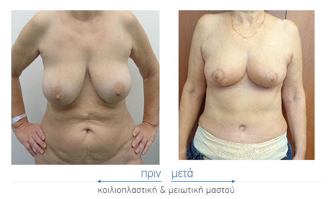 Koilioplastiki Before and After